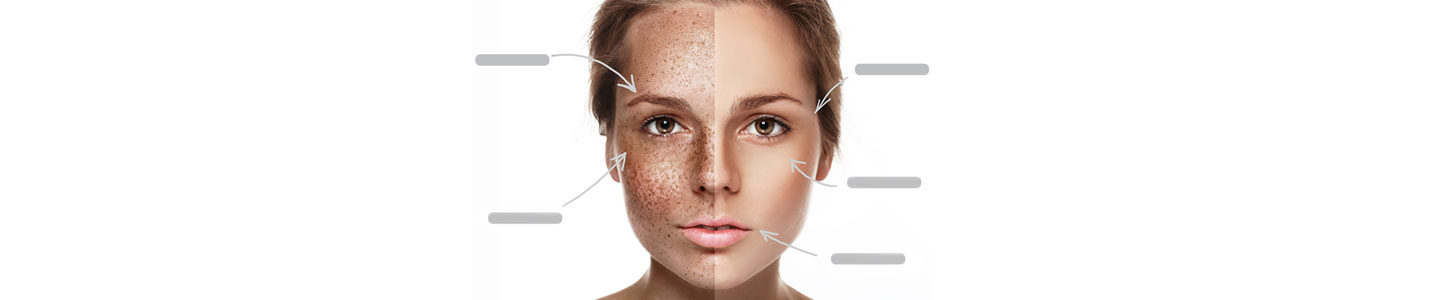 Skin Spots & Discoloration