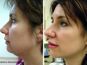 before & after - mesotherapy 1