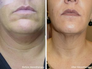 before & after - mesotherapy 2