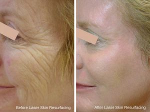 before & after - laser skin resurfacing 1