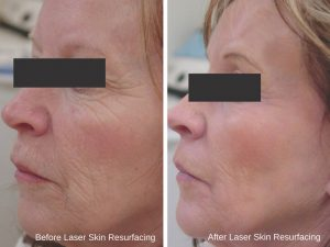 before & after - laser skin resurfacing 2